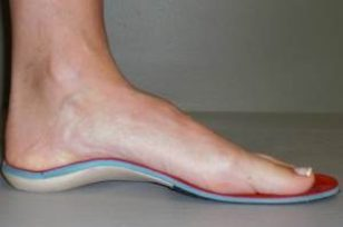Custom Foot Orthotic Fitting